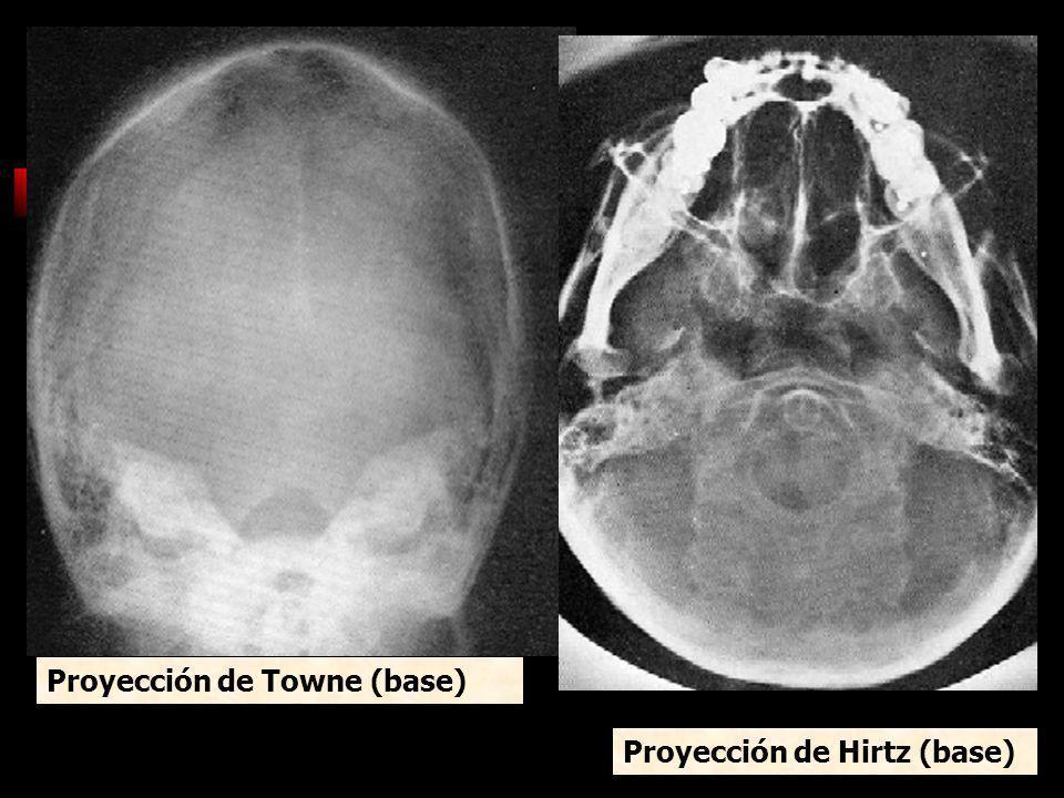 Proyección de Towne (base) Proyección de Hirtz (base)
