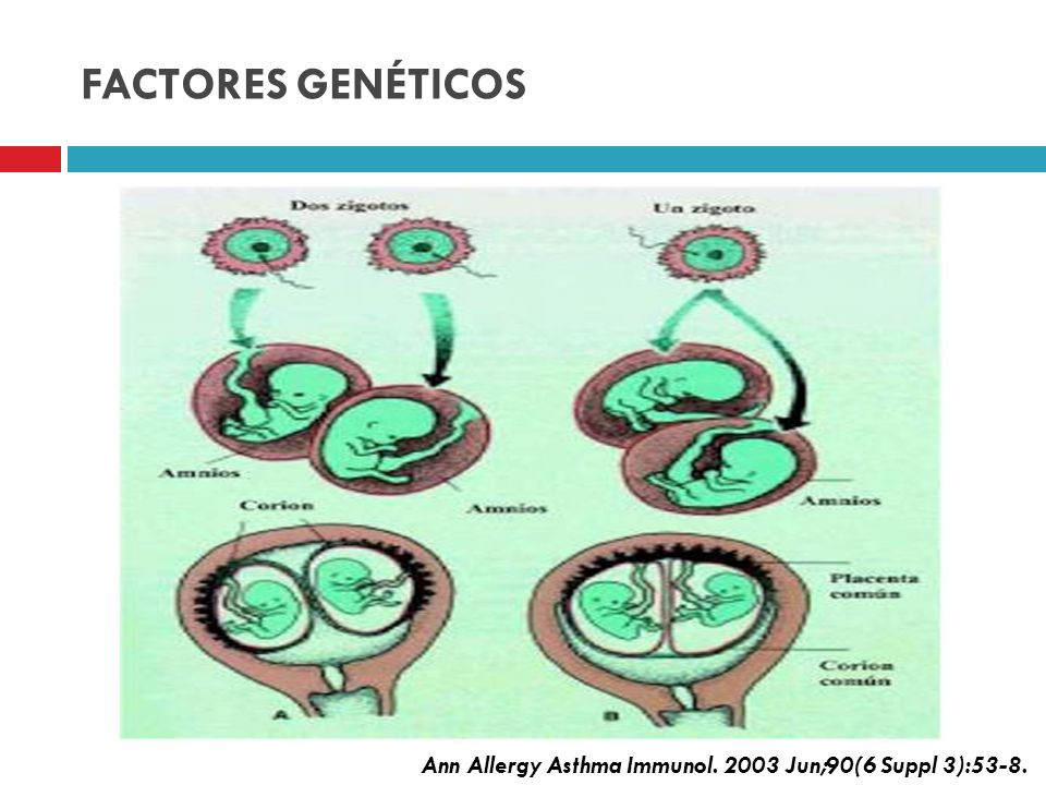 FACTORES GENÉTICOS Heredables Ann Allergy Asthma Immunol. 2003 Jun;90(6 Suppl 3):53-8.