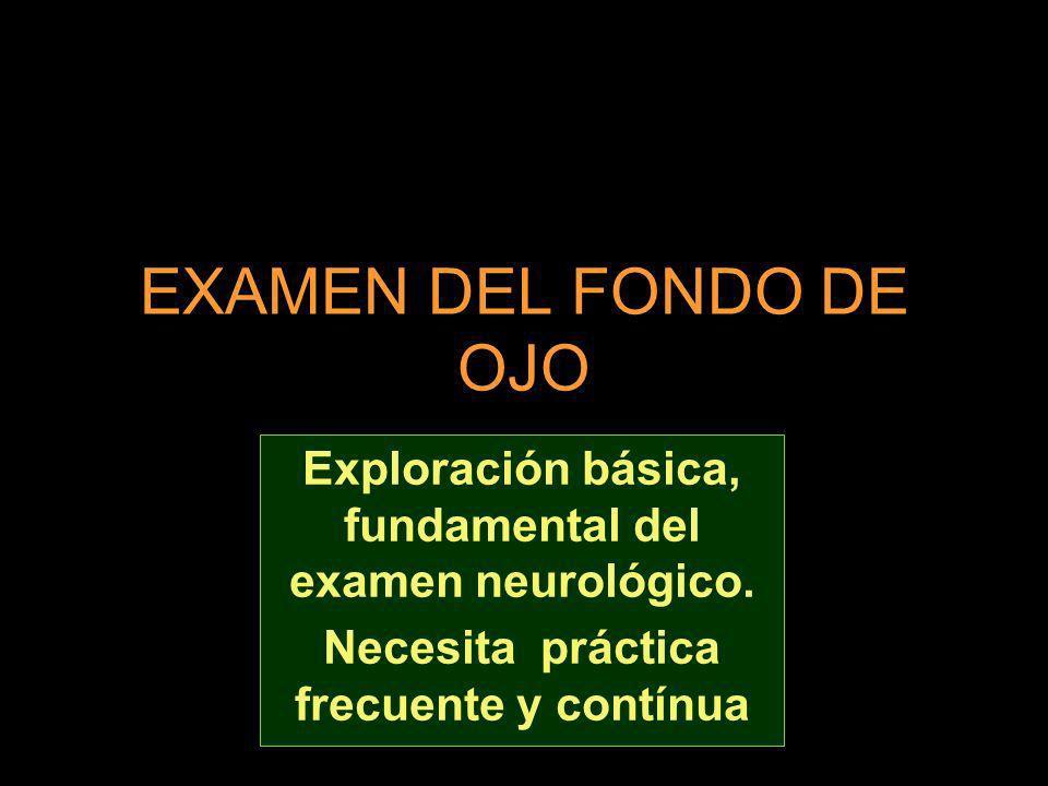 EXAMEN DEL FONDO DE OJO Exploración básica, fundamental del examen neurológico. Necesita práctica frecuente y contínua