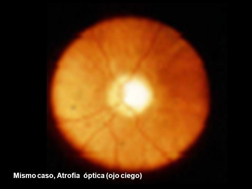 Mismo caso, Atrofia óptica (ojo ciego)