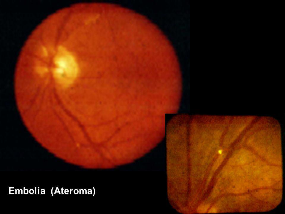 Embolia (Ateroma)