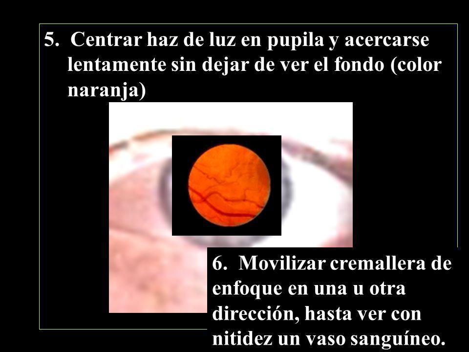 5. Centrar haz de luz en pupila y acercarse lentamente sin dejar de ver el fondo (color naranja) 6. Movilizar cremallera de enfoque en una u otra dire