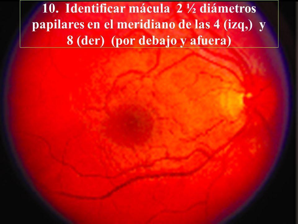 10. Identificar mácula 2 ½ diámetros papilares en el meridiano de las 4 (izq,) y 8 (der) (por debajo y afuera)