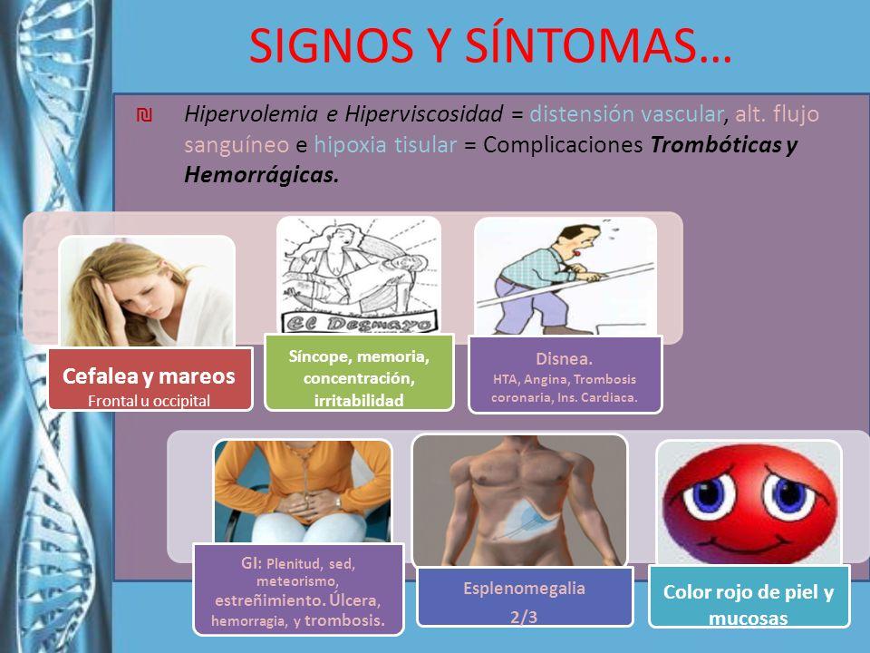 Hipervolemia e Hiperviscosidad = distensión vascular, alt. flujo sanguíneo e hipoxia tisular = Complicaciones Trombóticas y Hemorrágicas. SIGNOS Y SÍN