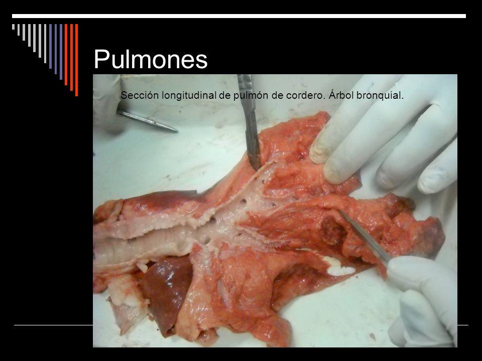 Pulmones Sección longitudinal de pulmón de cordero. Árbol bronquial.