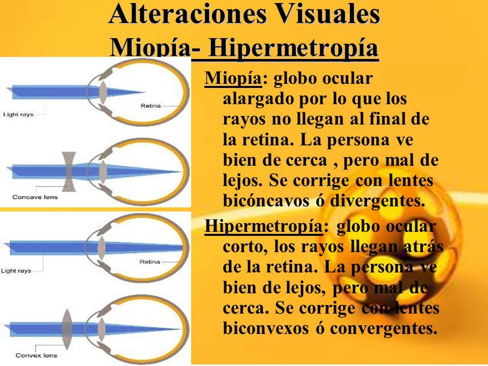 Alteraciones Visuales Miopía- Hipermetropía Miopía: globo ocular alargado por lo que los rayos no llegan al final de la retina. La persona ve bien de