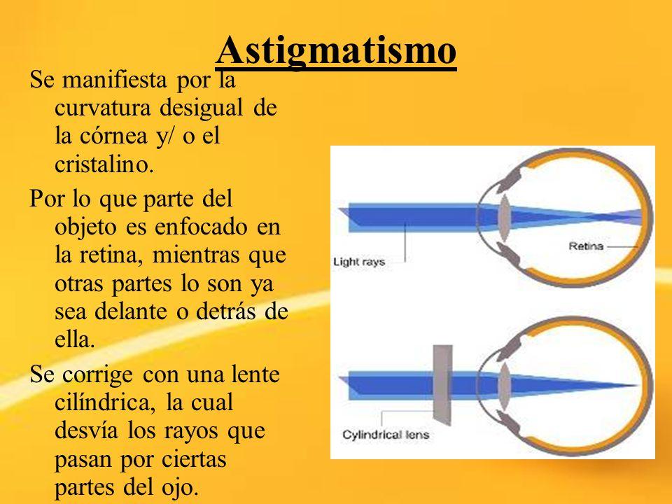 Astigmatismo Se manifiesta por la curvatura desigual de la córnea y/ o el cristalino. Por lo que parte del objeto es enfocado en la retina, mientras q