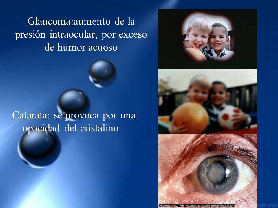 Glaucoma:aumento de la presión intraocular, por exceso de humor acuoso Catarata: se provoca por una opacidad del cristalino