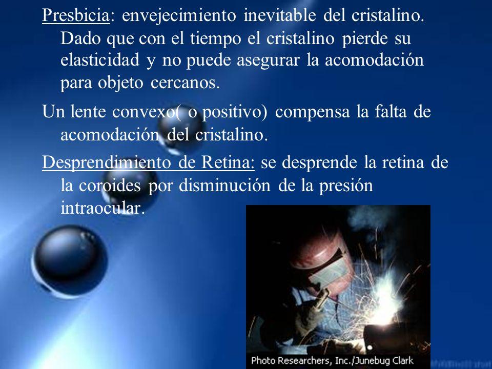 Presbicia: envejecimiento inevitable del cristalino. Dado que con el tiempo el cristalino pierde su elasticidad y no puede asegurar la acomodación par