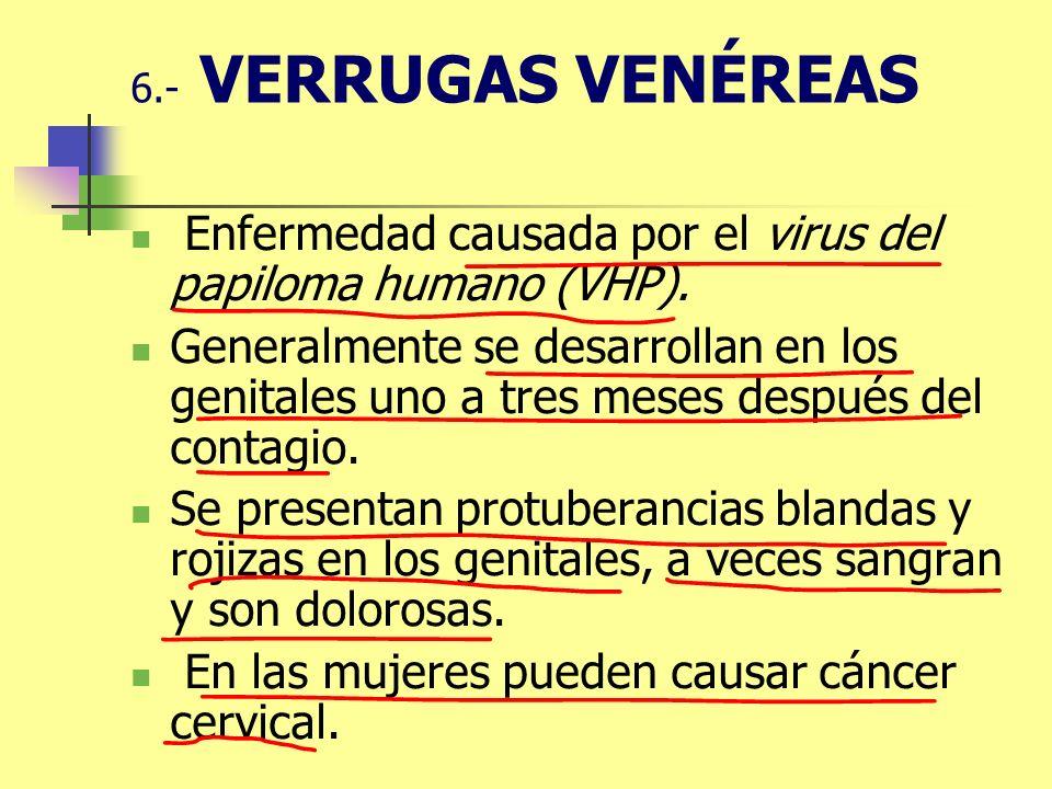 6.- VERRUGAS VENÉREAS Enfermedad causada por el virus del papiloma humano (VHP). Generalmente se desarrollan en los genitales uno a tres meses después