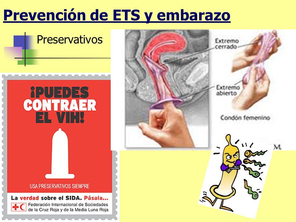 Prevención de ETS y embarazo Preservativos