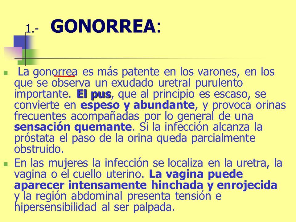 El pus La gonorrea es más patente en los varones, en los que se observa un exudado uretral purulento importante. El pus, que al principio es escaso, s