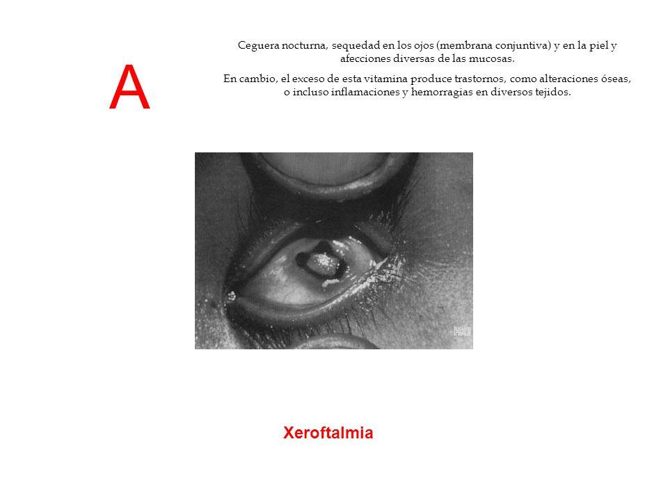 A Xeroftalmia Ceguera nocturna, sequedad en los ojos (membrana conjuntiva) y en la piel y afecciones diversas de las mucosas. En cambio, el exceso de