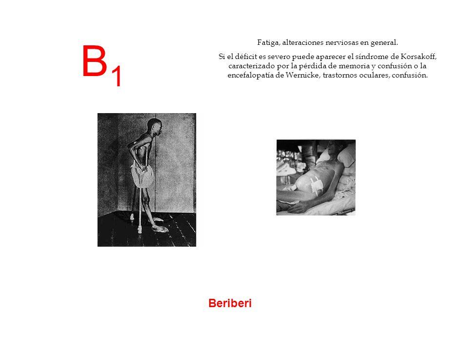 B1B1 Beriberi Fatiga, alteraciones nerviosas en general. Si el déficit es severo puede aparecer el síndrome de Korsakoff, caracterizado por la pérdida