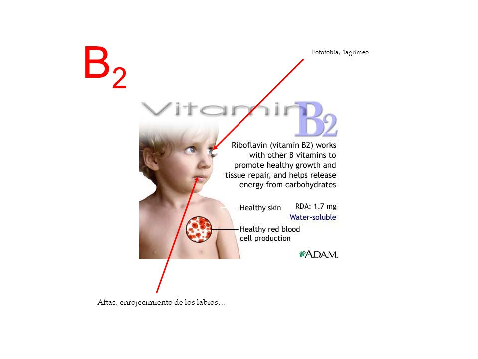 B3B3 Dermatosis, inflamación de la piel Trastornos nervisosos, demencia Pelagra Alteraciones del aparato digestivo, diarrea