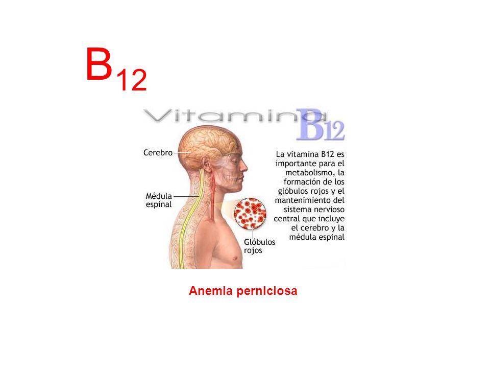 B 12 Anemia perniciosa
