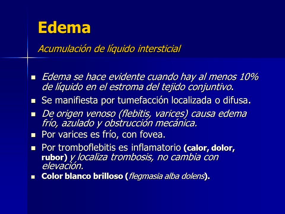 Edema Acumulación de líquido intersticial Edema se hace evidente cuando hay al menos 10% de líquido en el estroma del tejido conjuntivo. Edema se hace
