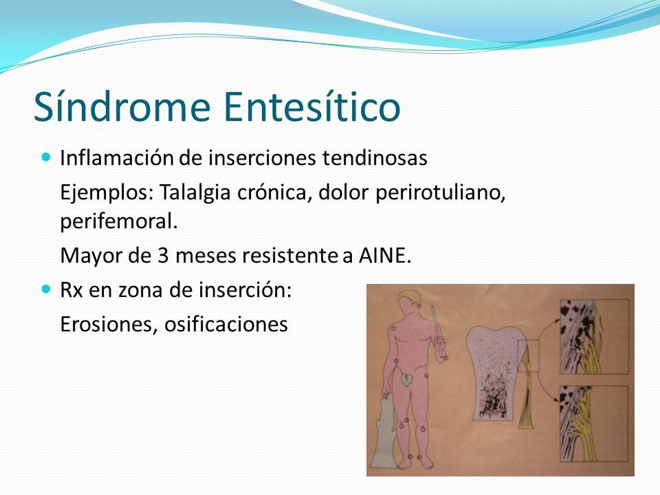 Síndrome Entesítico Inflamación de inserciones tendinosas Ejemplos: Talalgia crónica, dolor perirotuliano, perifemoral. Mayor de 3 meses resistente a