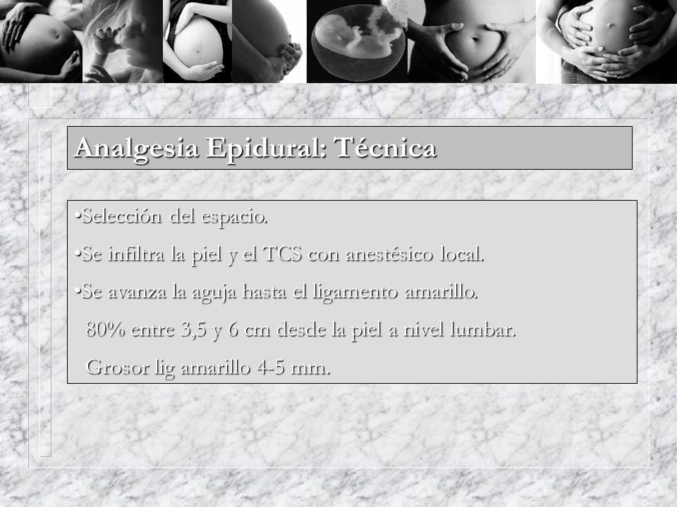 Analgesia Epidural: Técnica Selección del espacio.Selección del espacio. Se infiltra la piel y el TCS con anestésico local.Se infiltra la piel y el TC