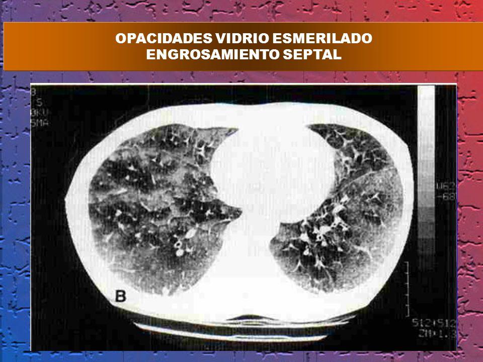OPACIDADES VIDRIO ESMERILADO ENGROSAMIENTO SEPTAL
