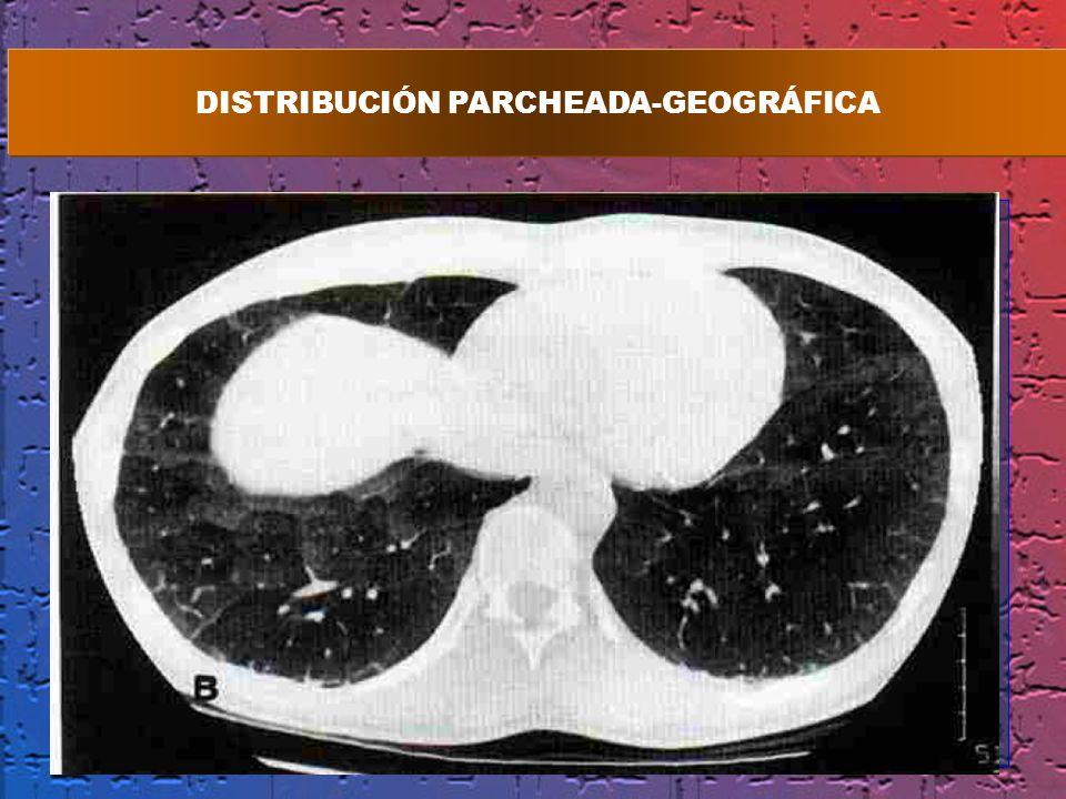 DISTRIBUCIÓN PARCHEADA-GEOGRÁFICA
