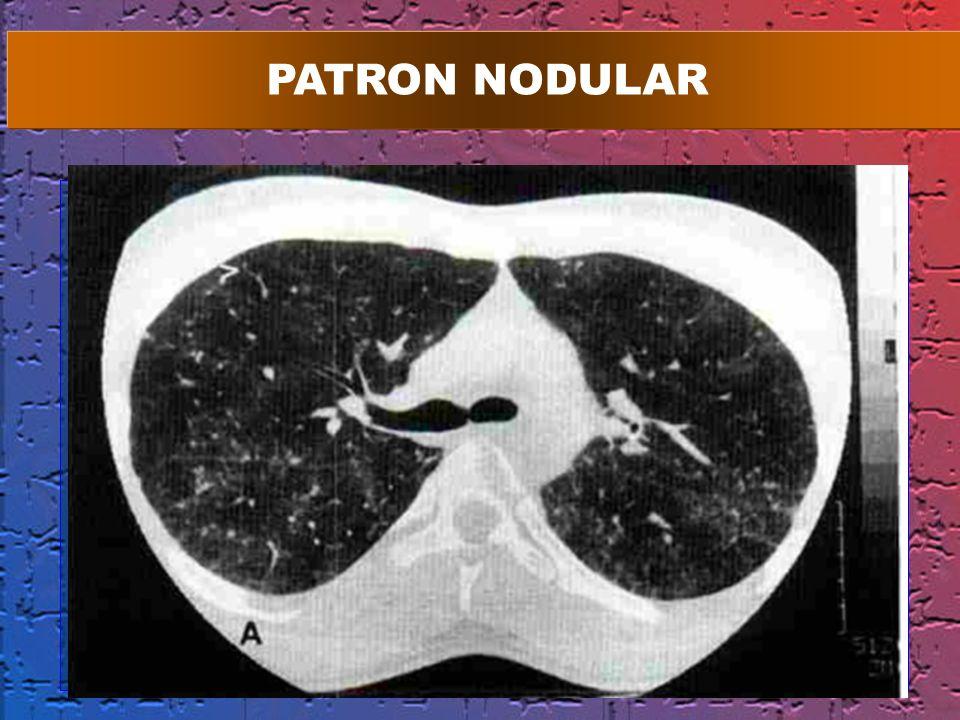 PATRON NODULAR