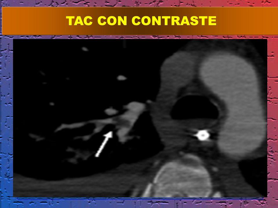 TAC CON CONTRASTE
