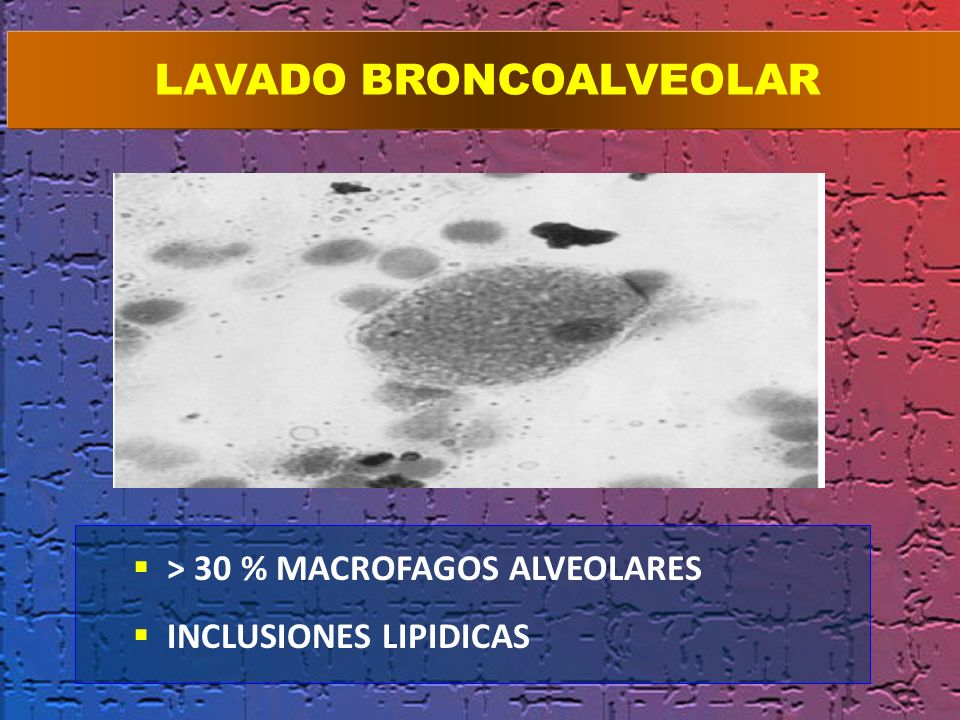 > 30 % MACROFAGOS ALVEOLARES INCLUSIONES LIPIDICAS EN LAS PRIMERAS 24 HORAS LAVADO BRONCOALVEOLAR