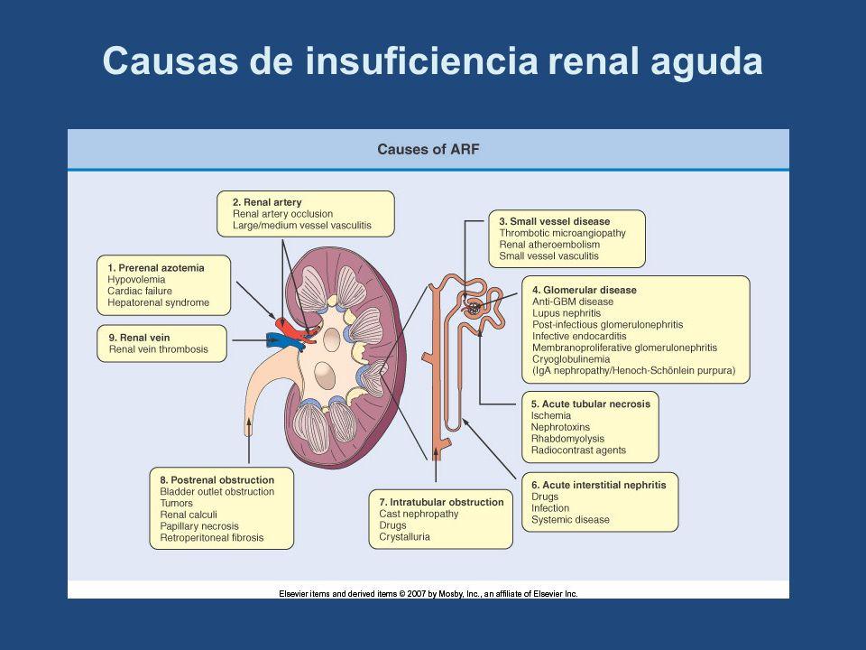 Causas de insuficiencia renal aguda