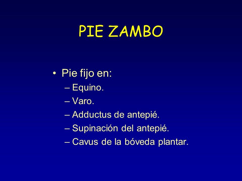 PIE ZAMBO Pie fijo en: –Equino. –Varo. –Adductus de antepié. –Supinación del antepié. –Cavus de la bóveda plantar.