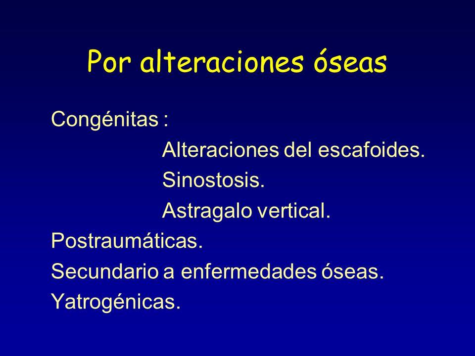 Por alteraciones óseas Congénitas : Alteraciones del escafoides. Sinostosis. Astragalo vertical. Postraumáticas. Secundario a enfermedades óseas. Yatr