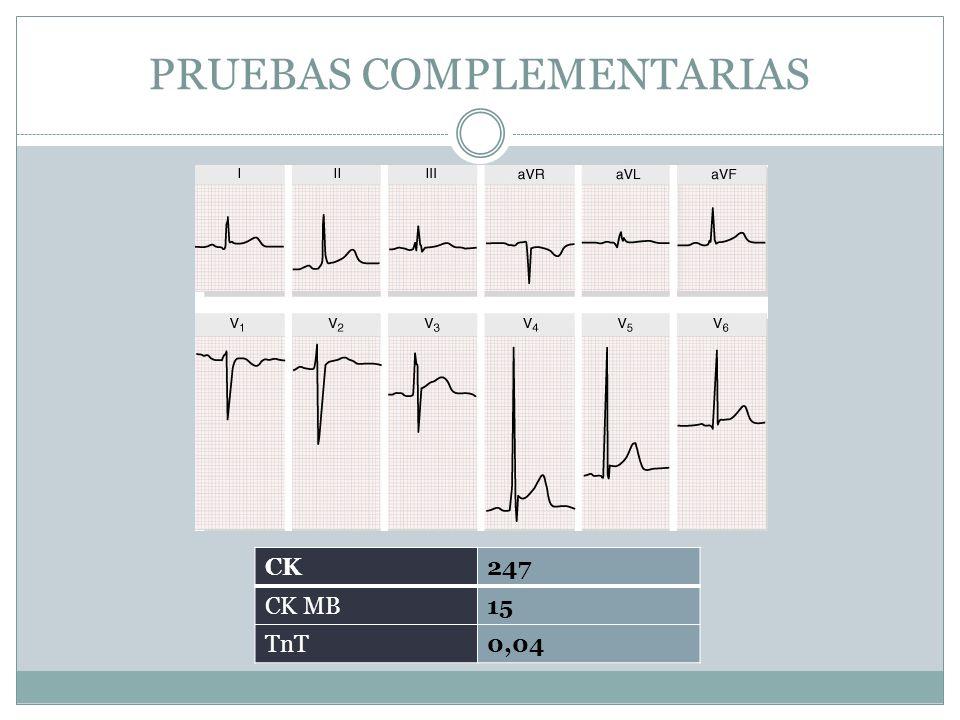 PRUEBAS COMPLEMENTARIAS CK247 CK MB15 TnT0,04