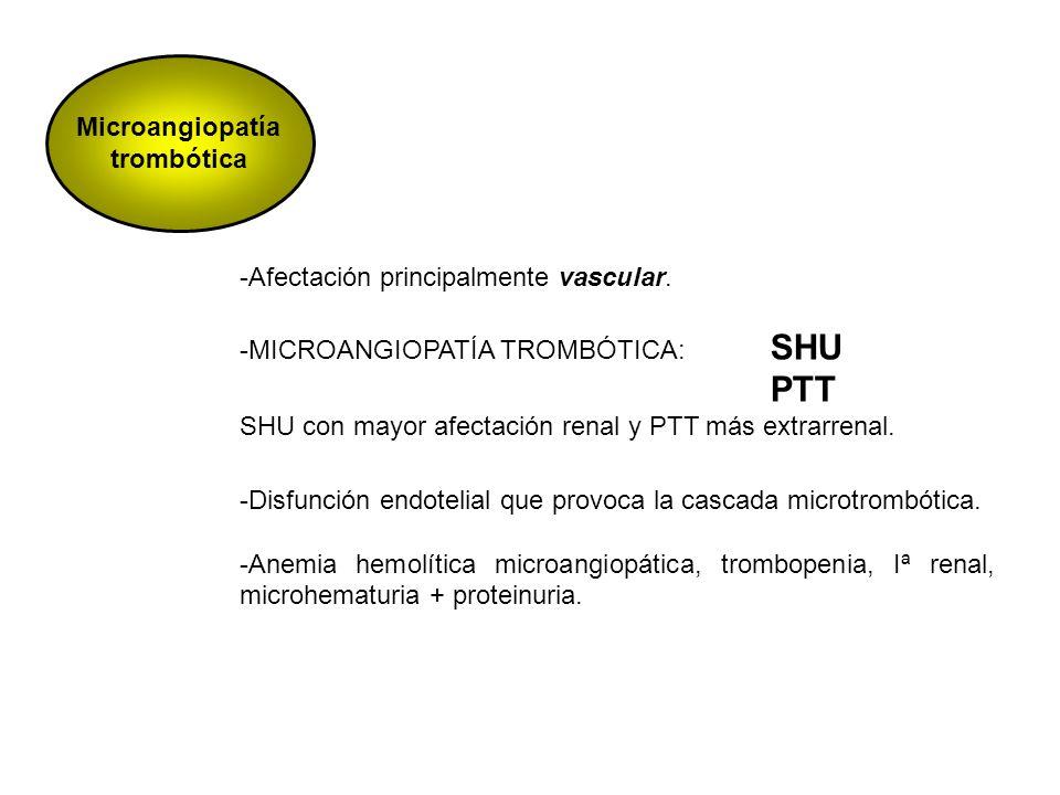 Microangiopatía trombótica -Afectación principalmente vascular. -MICROANGIOPATÍA TROMBÓTICA: SHU PTT SHU con mayor afectación renal y PTT más extrarre