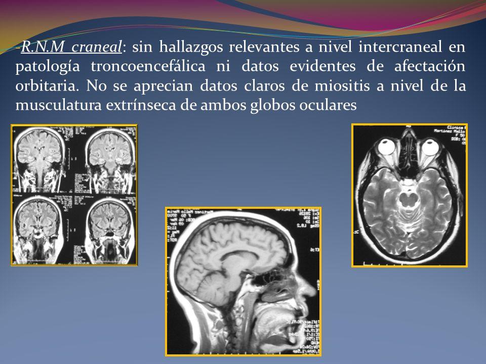 - R.N.M craneal: sin hallazgos relevantes a nivel intercraneal en patología troncoencefálica ni datos evidentes de afectación orbitaria. No se aprecia