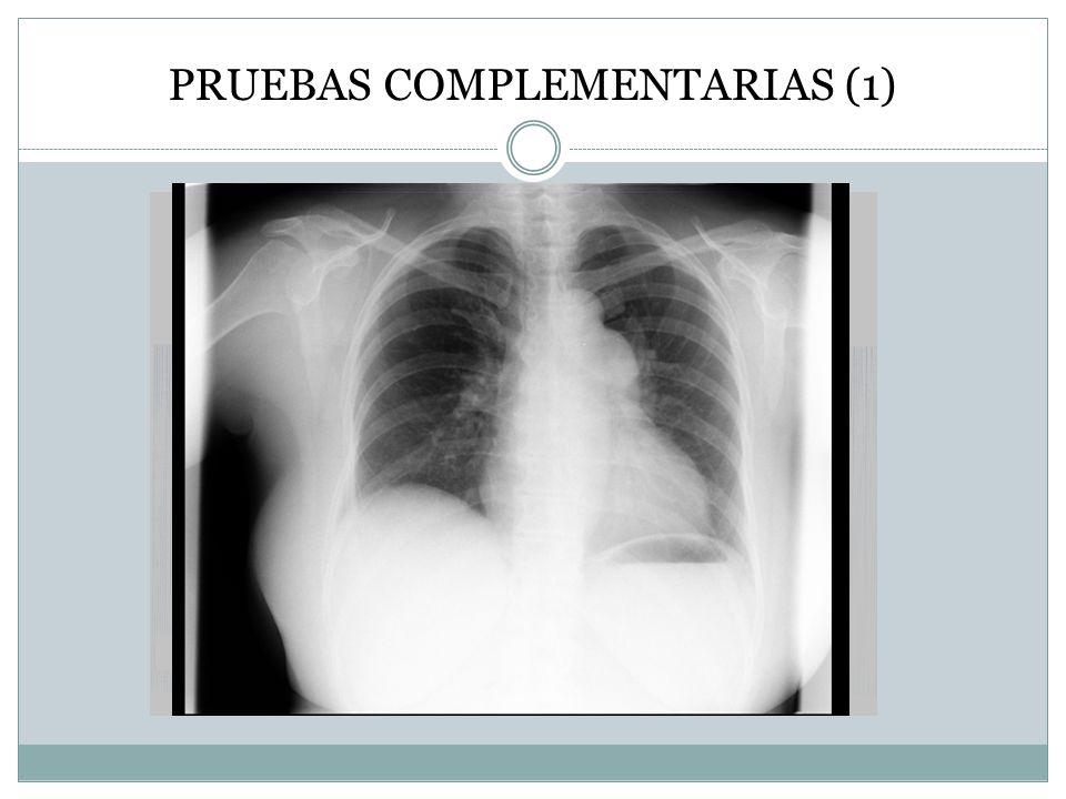 CUESTIONES 1.¿Perfil clínico del síncope. 2.