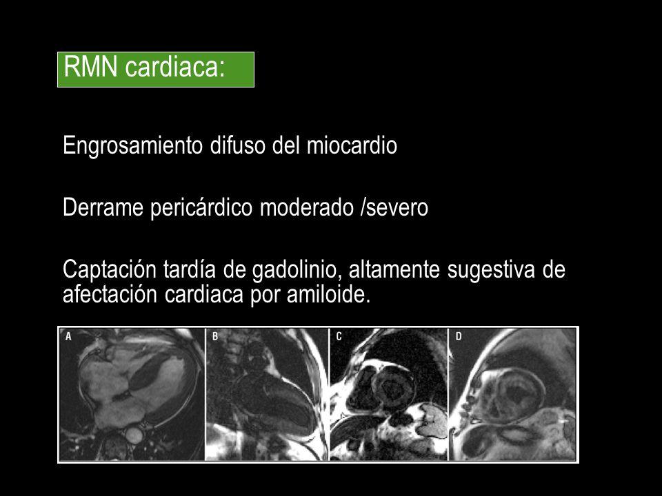 Engrosamiento difuso del miocardio Derrame pericárdico moderado /severo Captación tardía de gadolinio, altamente sugestiva de afectación cardiaca por