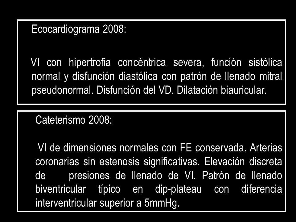 Ecocardiograma 2008: VI con hipertrofia concéntrica severa, función sistólica normal y disfunción diastólica con patrón de llenado mitral pseudonormal