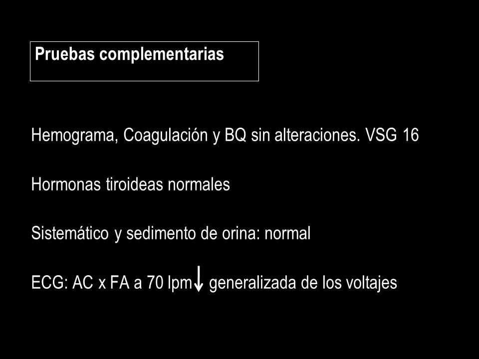 Hemograma, Coagulación y BQ sin alteraciones. VSG 16 Hormonas tiroideas normales Sistemático y sedimento de orina: normal ECG: AC x FA a 70 lpm genera