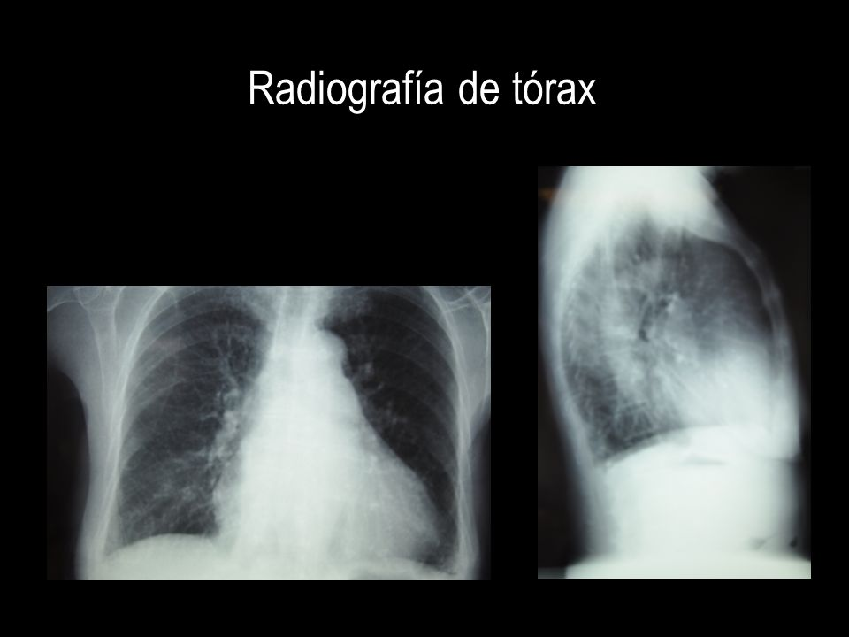 IC restrictiva refractaria al tto La paciente presenta una evolución tórpida… DESCARTAR PERICARDITIS PREVIA PROCESOS INFILTRATIVOS DESCARTAR PERICARDITIS PREVIA PROCESOS INFILTRATIVOS Hemocromatosis Sarcoidosis Amiloidosis S.
