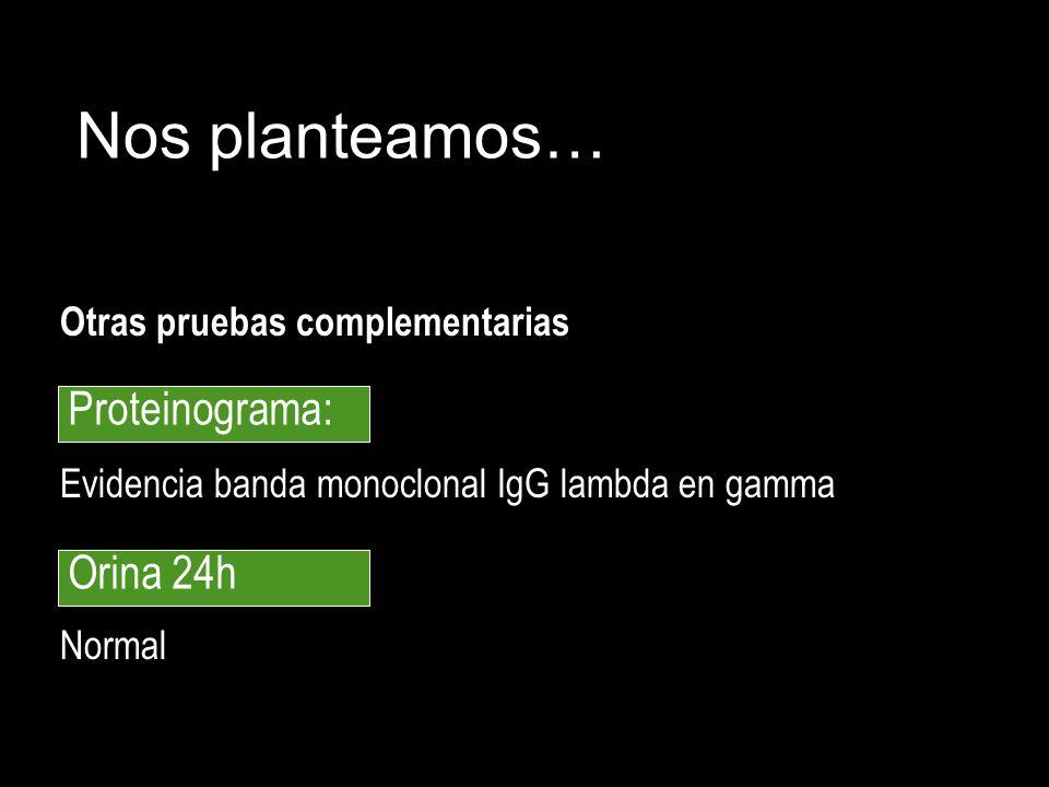 Otras pruebas complementarias Evidencia banda monoclonal IgG lambda en gamma Normal Nos planteamos… Proteinograma: Orina 24h