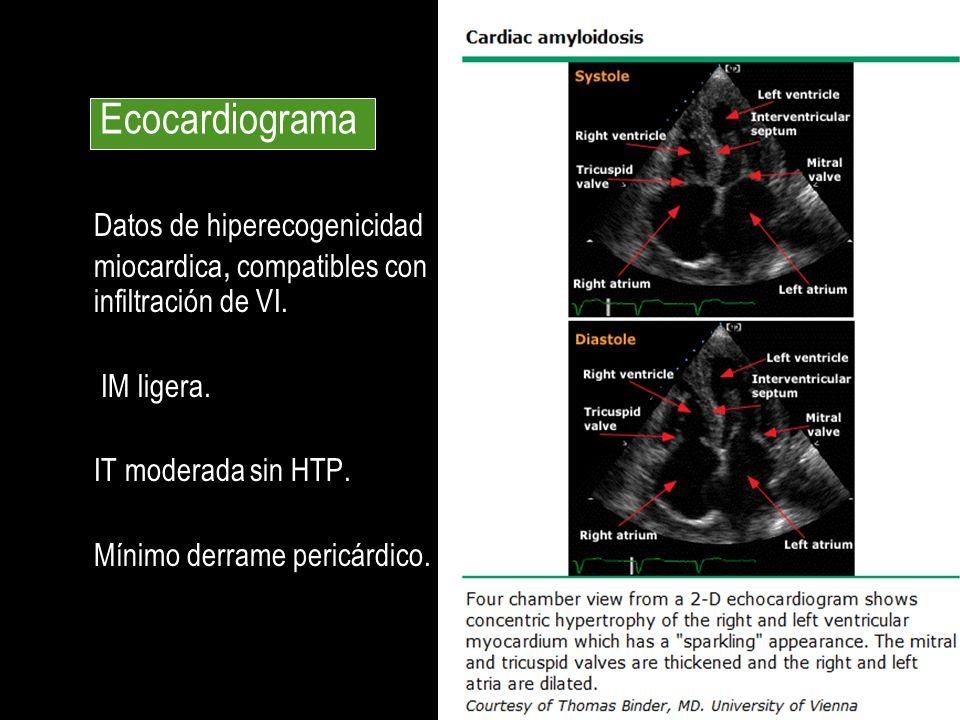 Datos de hiperecogenicidad miocardica, compatibles con infiltración de VI. IM ligera. IT moderada sin HTP. Mínimo derrame pericárdico. Ecocardiograma