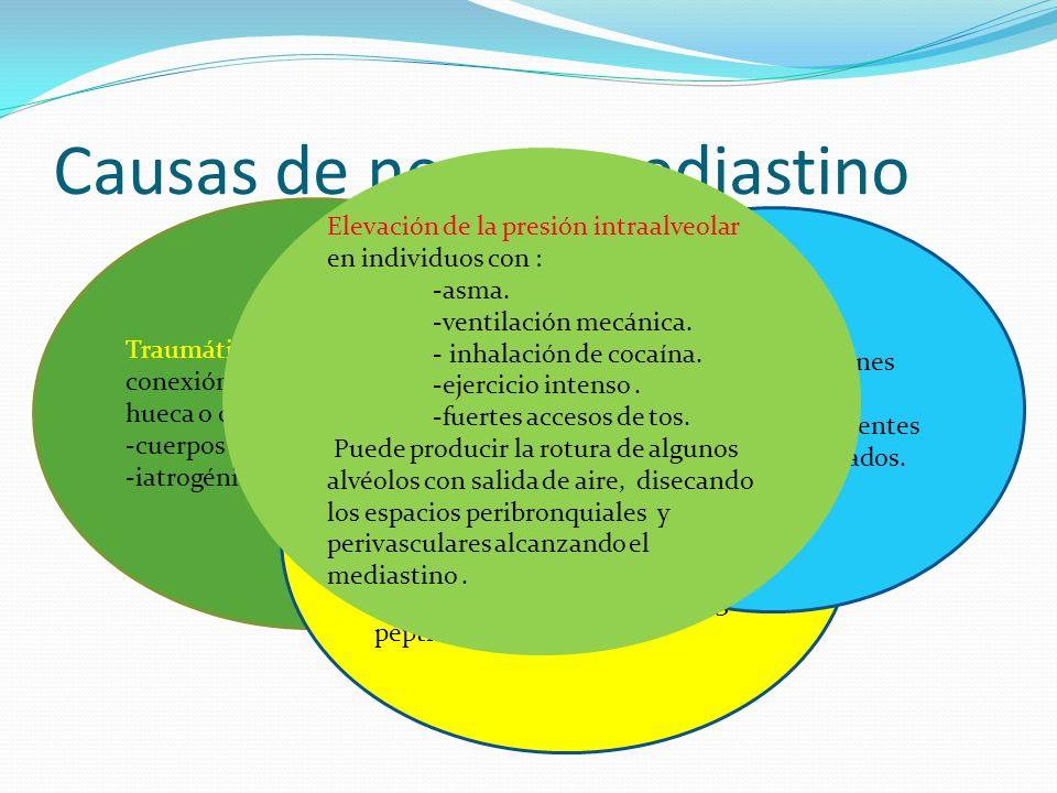 Causas de neumomediastino Traumáticas o quirúrgicas conexión directa con una víscera hueca o con el exterior. -cuerpos extraños. -iatrogénica. Fístula