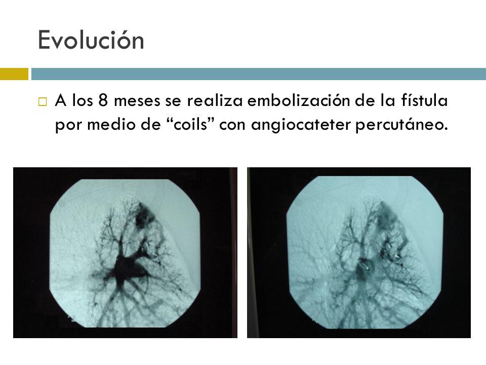 Evolución A los 8 meses se realiza embolización de la fístula por medio de coils con angiocateter percutáneo.