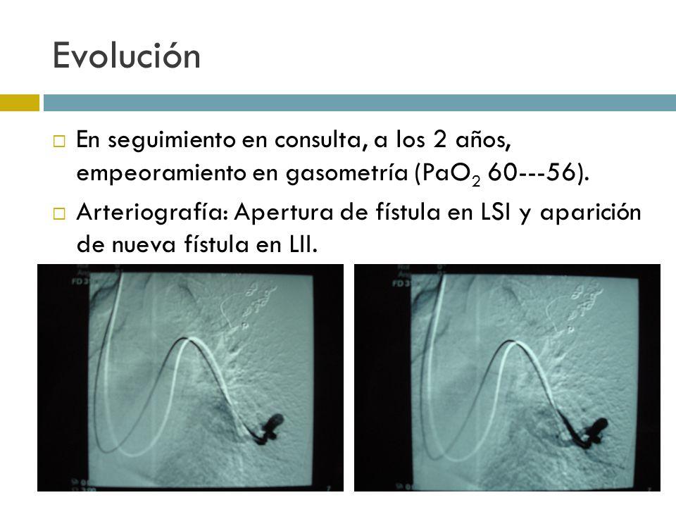 Evolución En seguimiento en consulta, a los 2 años, empeoramiento en gasometría (PaO 2 60---56). Arteriografía: Apertura de fístula en LSI y aparición