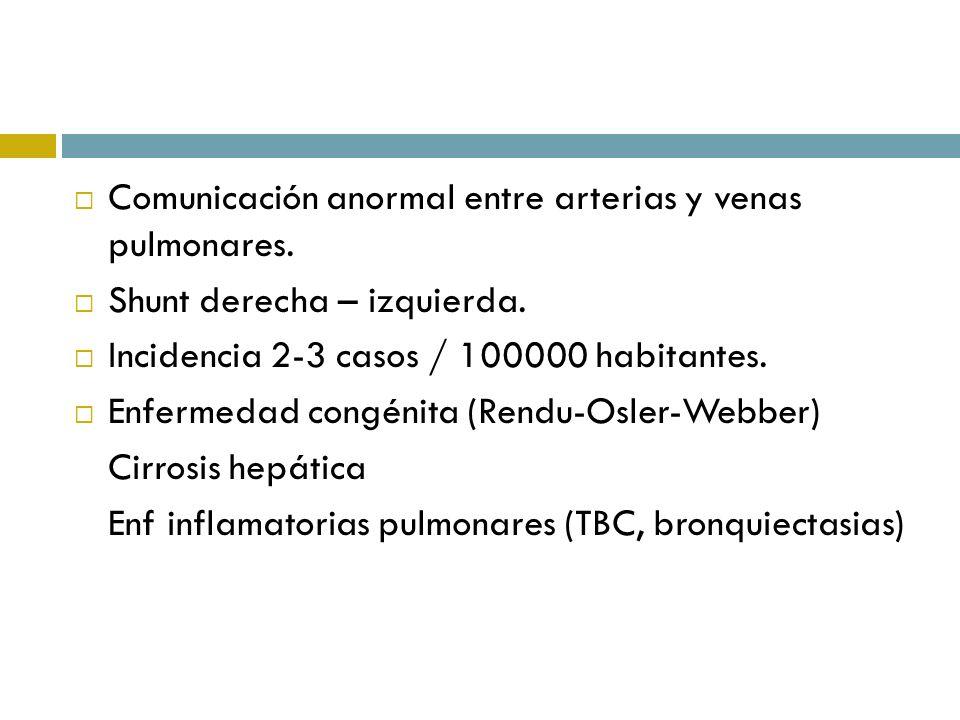 Comunicación anormal entre arterias y venas pulmonares. Shunt derecha – izquierda. Incidencia 2-3 casos / 100000 habitantes. Enfermedad congénita (Ren