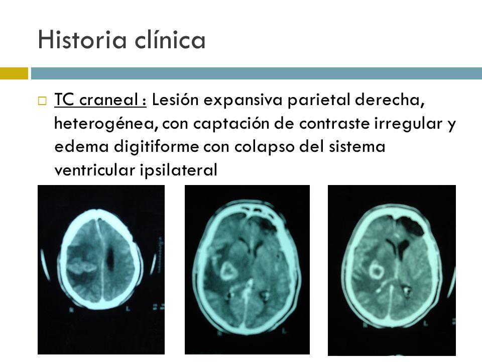Historia clínica TC craneal : Lesión expansiva parietal derecha, heterogénea, con captación de contraste irregular y edema digitiforme con colapso del