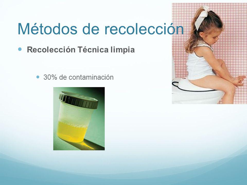 Métodos de recolección Recolección Técnica limpia 30% de contaminación