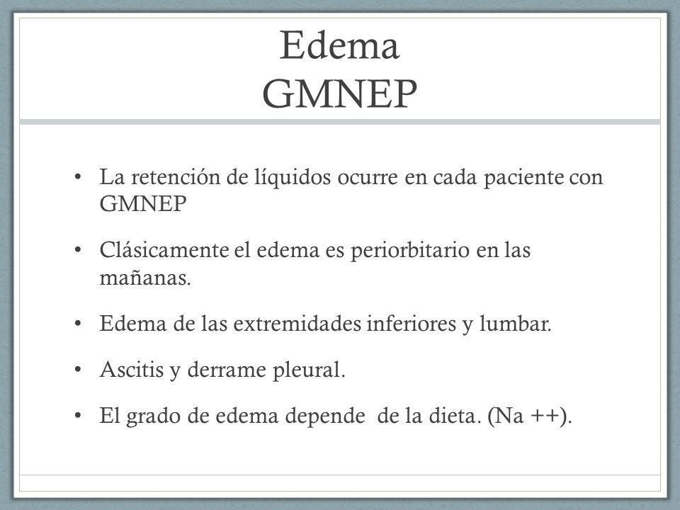 Edema GMNEP La retención de líquidos ocurre en cada paciente con GMNEP Clásicamente el edema es periorbitario en las mañanas. Edema de las extremidade