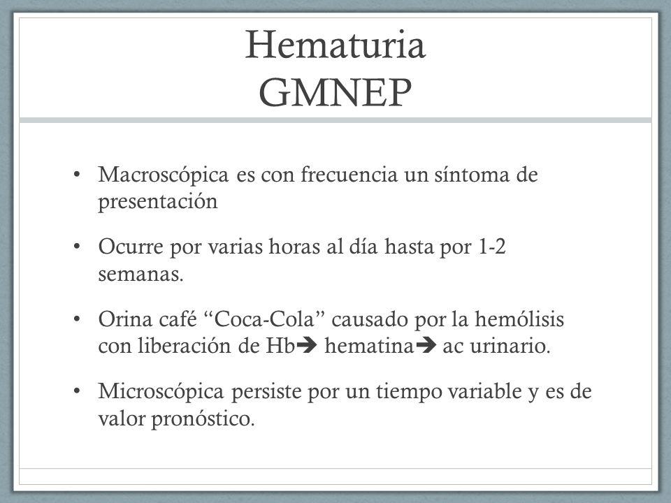 Hematuria GMNEP Macroscópica es con frecuencia un síntoma de presentación Ocurre por varias horas al día hasta por 1-2 semanas. Orina café Coca-Cola c