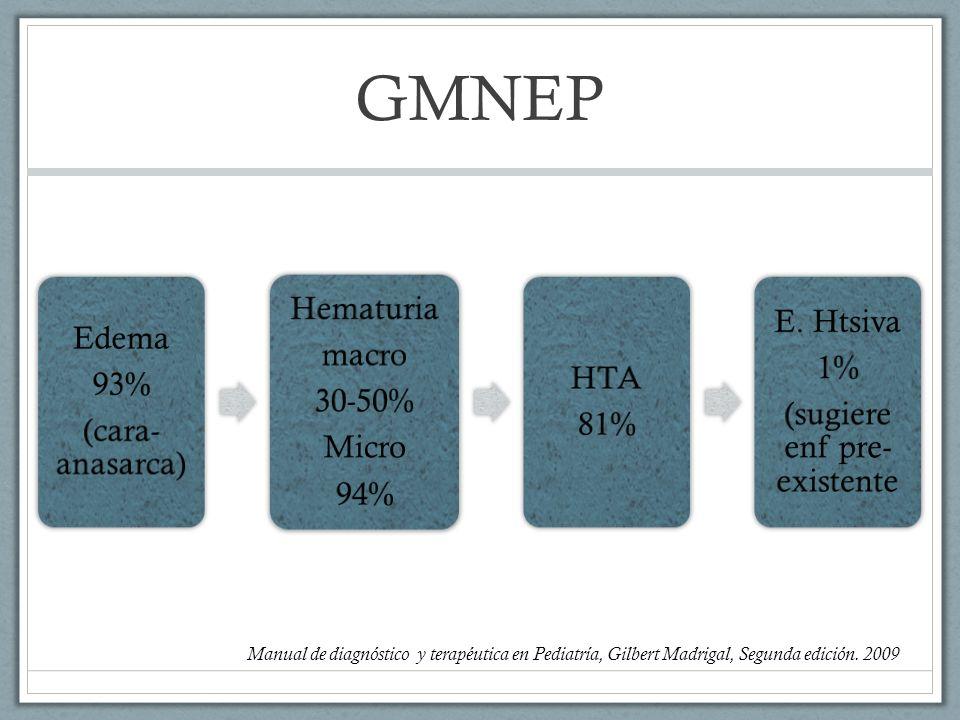 GMNEP Edema 93% (cara- anasarca) Hematuria macro 30-50% Micro 94% HTA 81% E. Htsiva 1% (sugiere enf pre- existente Manual de diagnóstico y terapéutica